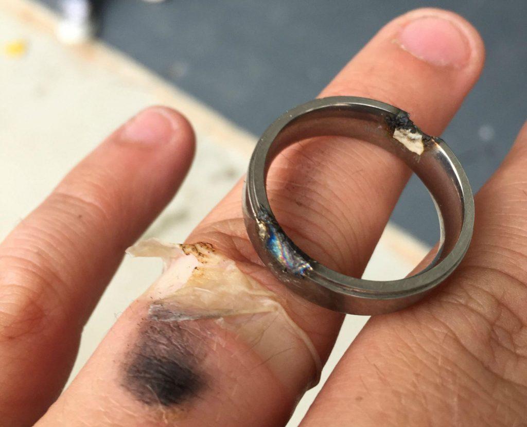 Zdjęcie po wypadku. Zespawanie obrączki elektryka na palcu.